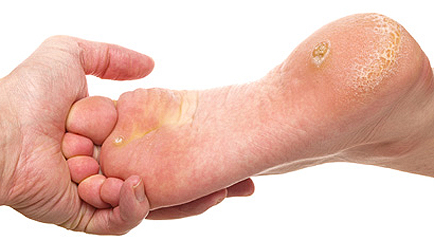 Dry skin under foot