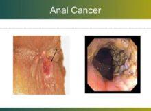 cancer-de-ano-e1472254713455