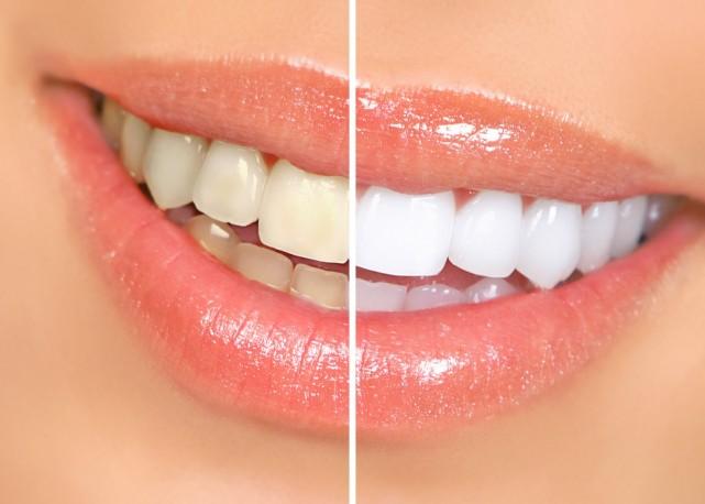 blanqueamiento_dental-copia