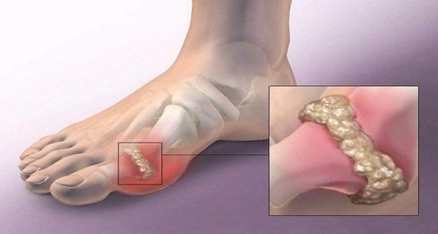 cristalizacion-tendon